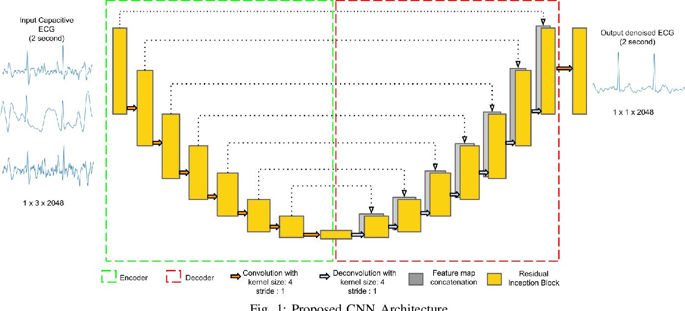 Figure 1 for Deep Network for Capacitive ECG Denoising