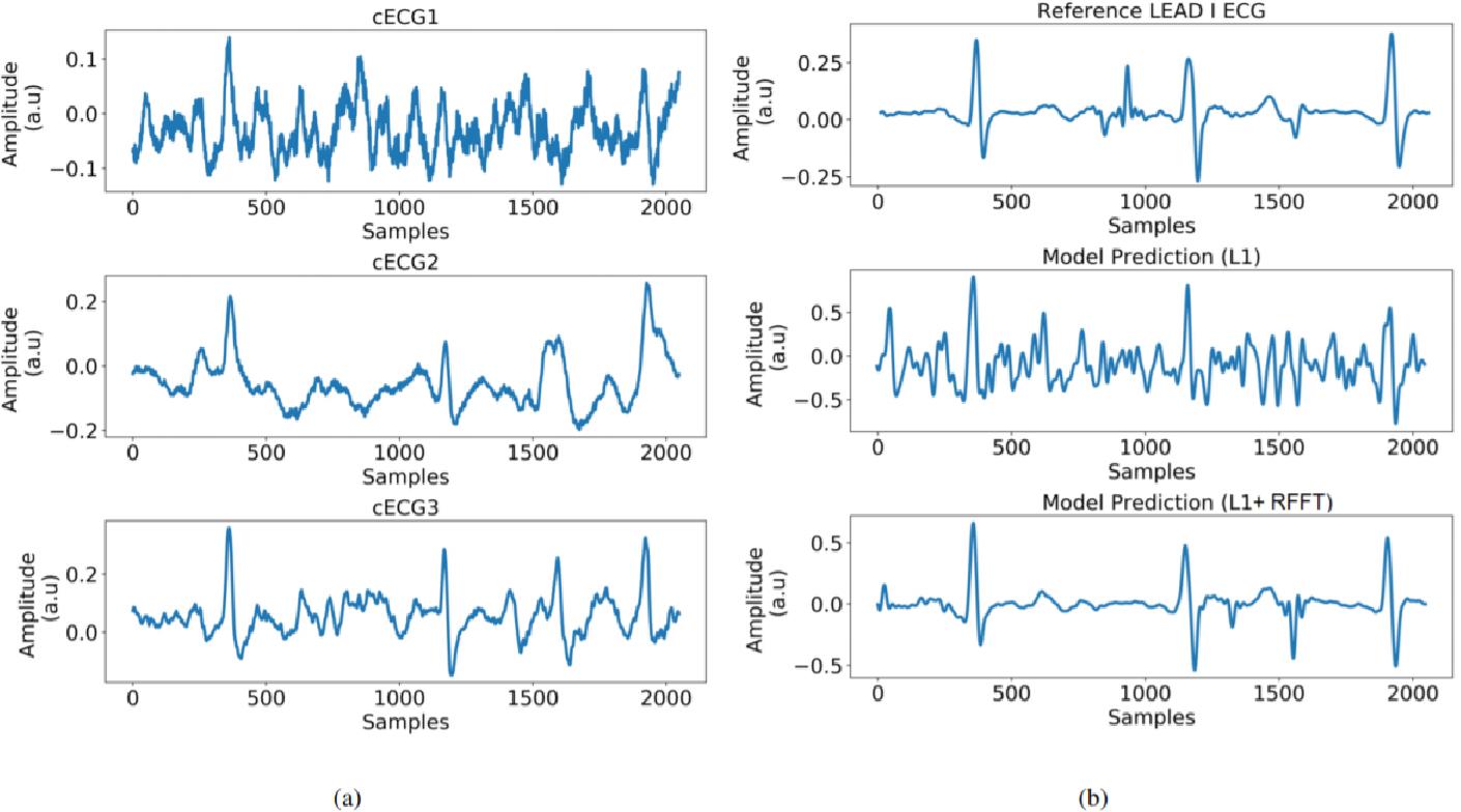 Figure 2 for Deep Network for Capacitive ECG Denoising