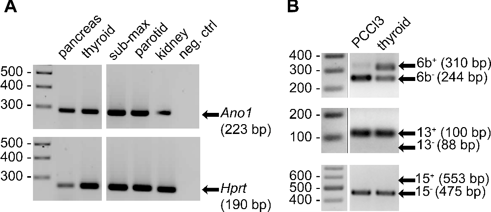 Fig. 1. Expression of anoctamin-1 (Ano1) in rat tissues and in the rat thyroid PCCl3 cell line. A: detection of Ano1 transcripts in rat tissues by RT-PCR. B: comparative analysis of Ano1 alternatively spliced forms in PCCl3 cells and in rat thyroid tissue by RT-PCR.
