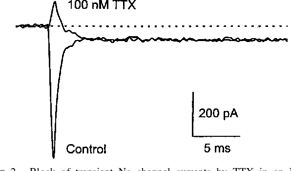 FIG. 2. Block of transient Na channel currents by TTX in an isolated ganglion cell. Inward currents were measured during a voltage step to 210 mV before and after addition of 100 nM TTX. Holding potential was 270 mV. Sustained inward current arising from the activation of Ca channels, in this cell of ;50 pA amplitude, was unaffected by TTX.