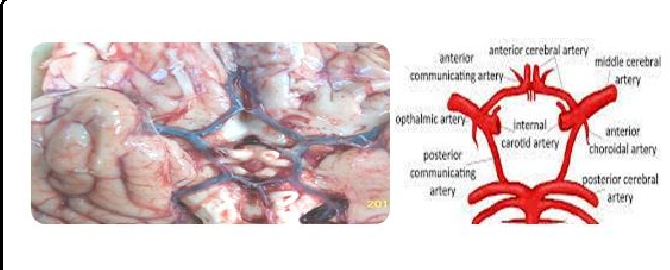 Study Of Variant Posterior Cerebral Circulation And Its Clinical