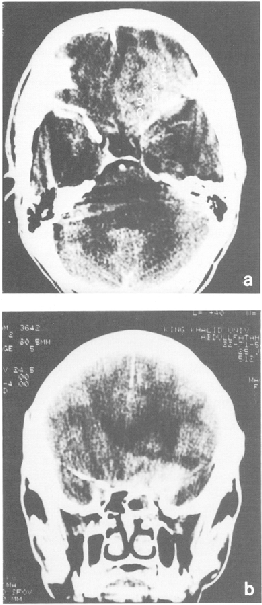 Fig. 1. Patient 1. Axial (a) and coronal (b) CT scans of brain and PNS showing aspergillosis of the left anterior skull base with intracranial extension. Note the involvement of the left cavernous sinus and carotid bifurcation in the mass