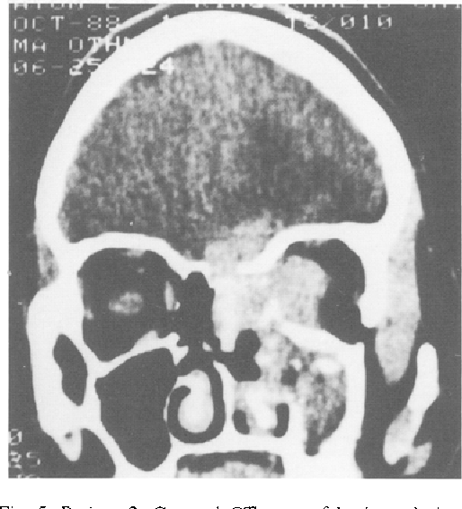 Fig. 5. Patient 3. Coronal CT scan of brain and sinuses showing extensive aspergillosis of the PNS, orbit and skull base