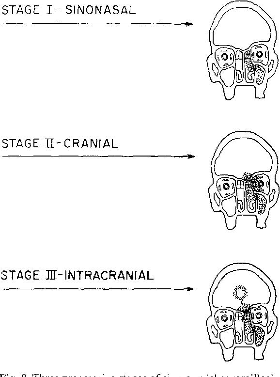 Fig. 8. Three progressive stages of sino-cranial aspergillosis