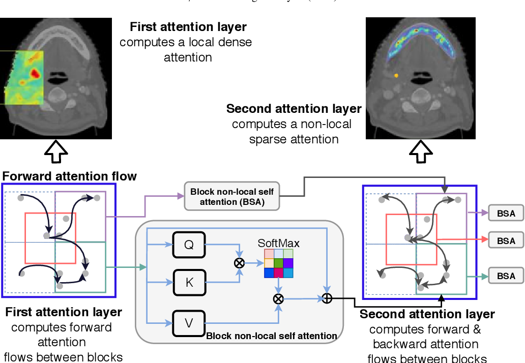 Figure 3 for Nested-block self-attention for robust radiotherapy planning segmentation