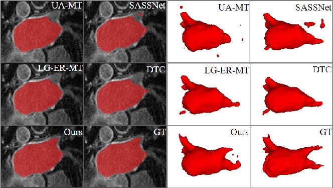 Figure 2 for Hierarchical Consistency Regularized Mean Teacher for Semi-supervised 3D Left Atrium Segmentation