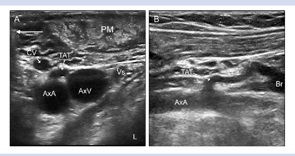 Figure 2 from Ultrasound-guided infraclavicular axillary vein ...