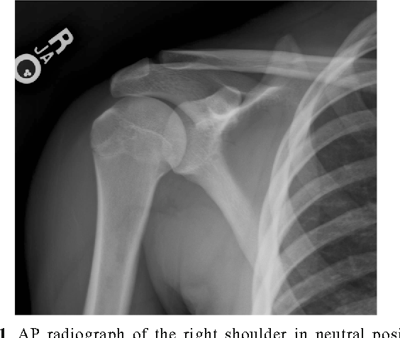 Glenoid avulsion of the glenohumeral ligament (GAGL): a case report ...