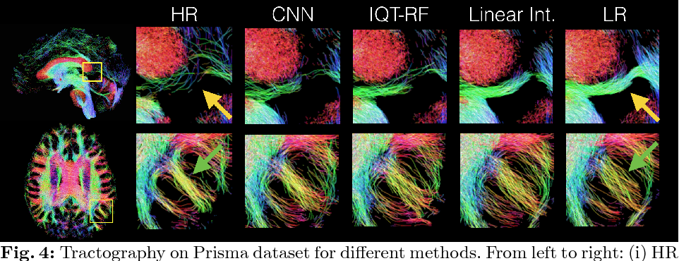 Figure 4 for Bayesian Image Quality Transfer with CNNs: Exploring Uncertainty in dMRI Super-Resolution