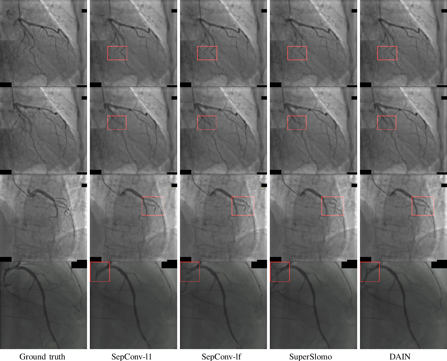 Figure 4 for Reducing the X-ray radiation exposure frequency in cardio-angiography via deep-learning based video interpolation