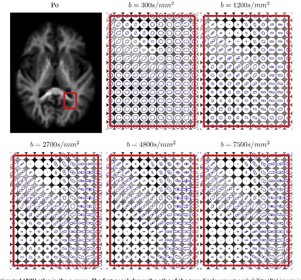Figure 3 for Diffeomorphic Metric Mapping and Probabilistic Atlas Generation of Hybrid Diffusion Imaging based on BFOR Signal Basis
