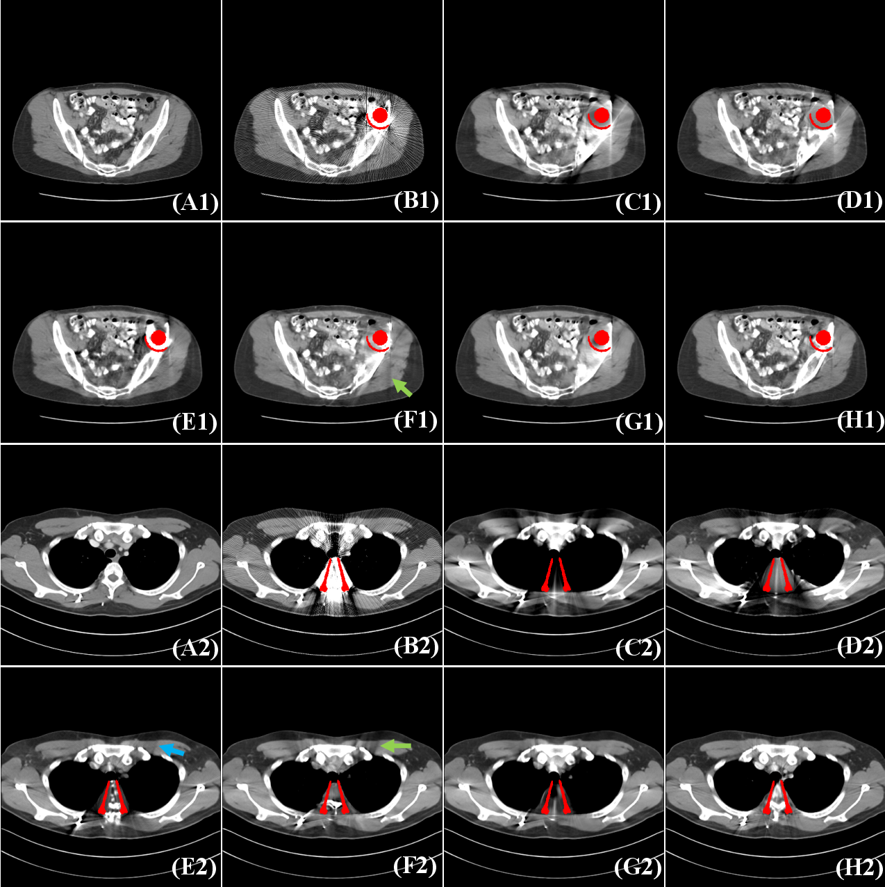 Figure 4 for Deep Sinogram Completion with Image Prior for Metal Artifact Reduction in CT Images