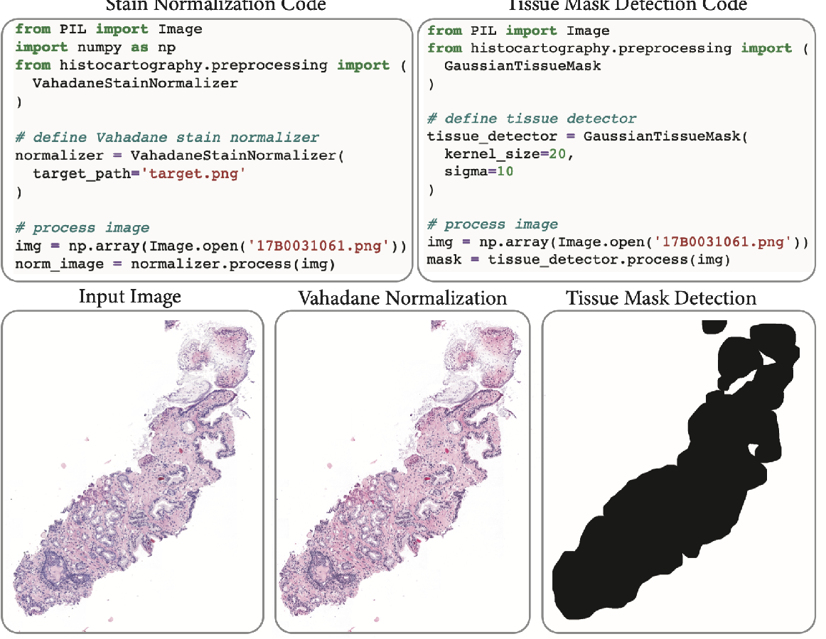 Figure 3 for HistoCartography: A Toolkit for Graph Analytics in Digital Pathology