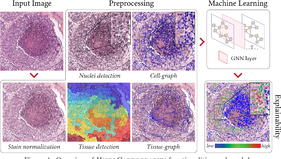 Figure 2 for HistoCartography: A Toolkit for Graph Analytics in Digital Pathology