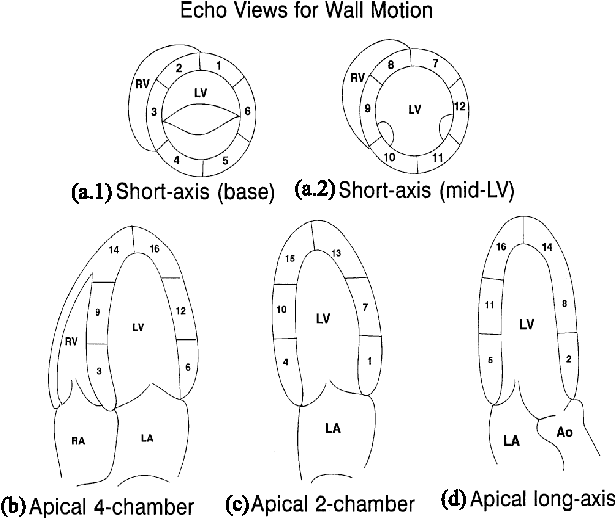 Figure 1 from automated heart wall motion abnormality detection from figure 1 echocardiographic views for wall motion evaluation in the short axis view ccuart Image collections