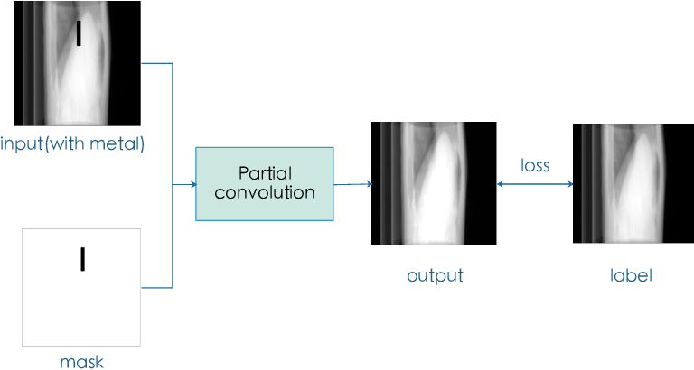 Figure 4 for Projection Inpainting Using Partial Convolution for Metal Artifact Reduction