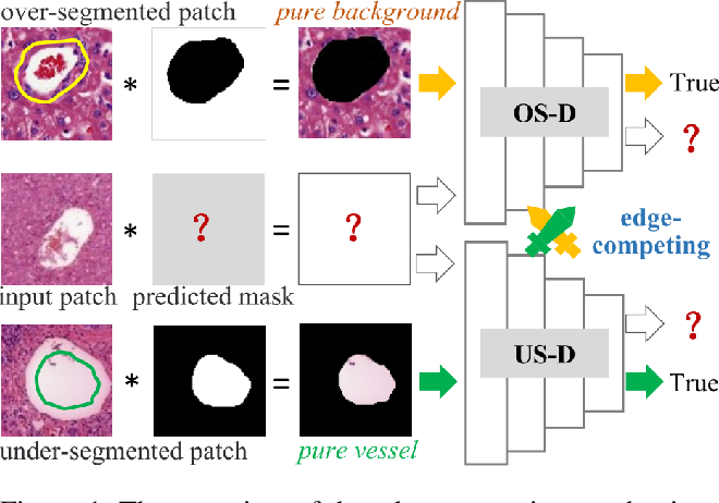 Figure 1 for Edge-competing Pathological Liver Vessel Segmentation with Limited Labels