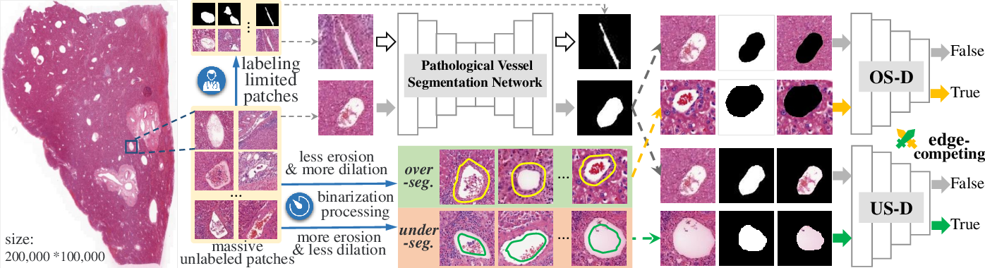 Figure 3 for Edge-competing Pathological Liver Vessel Segmentation with Limited Labels
