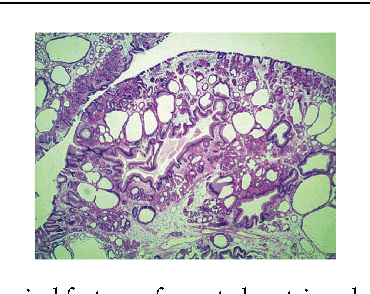 Figure 3: Histological feature of resected gastric polyps