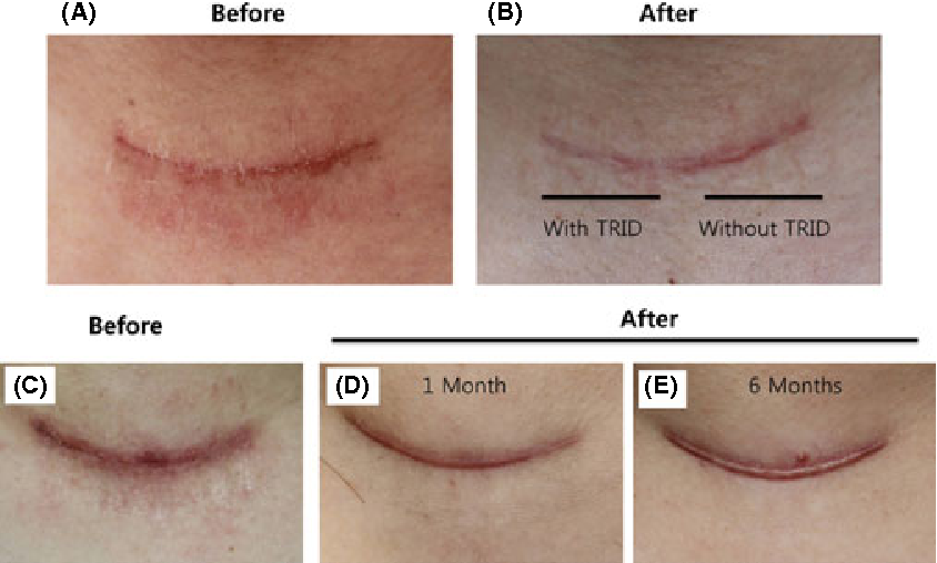 Figure 4 from Prevention of thyroidectomy scars in Korean patients