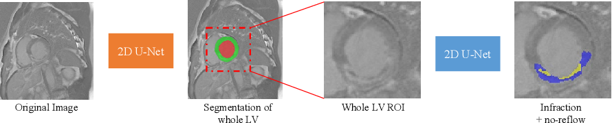 Figure 2 for Cascaded Framework for Automatic Evaluation of Myocardial Infarction from Delayed-Enhancement Cardiac MRI