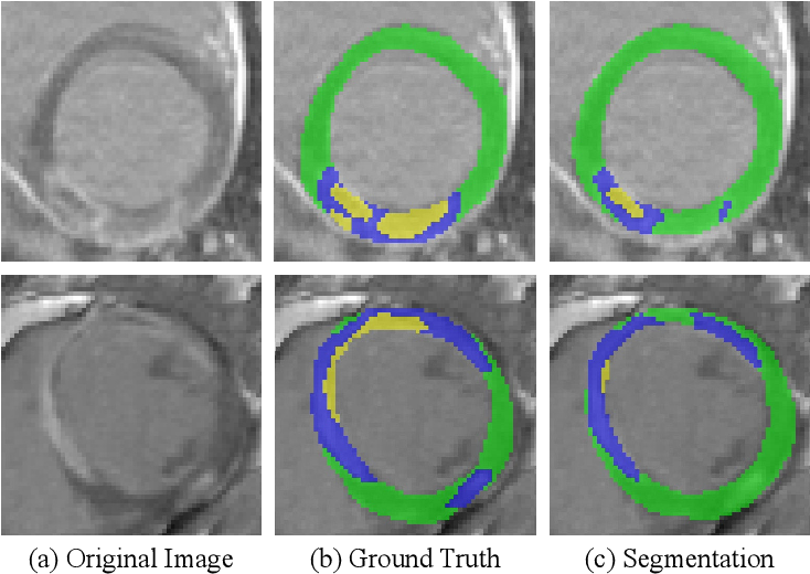 Figure 3 for Cascaded Framework for Automatic Evaluation of Myocardial Infarction from Delayed-Enhancement Cardiac MRI