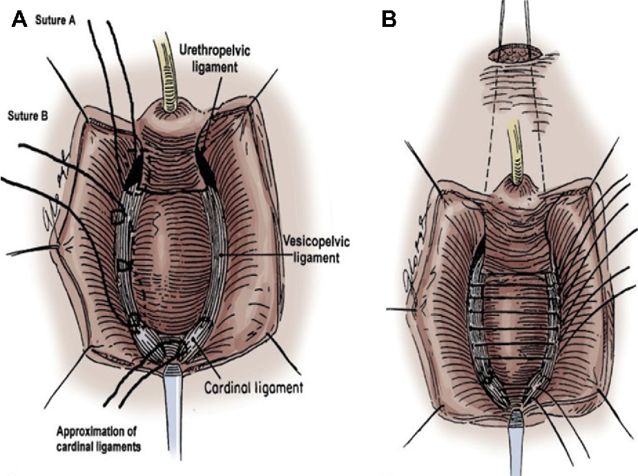 Figure 1 from Surgical Management of Female Voiding Dysfunction ...