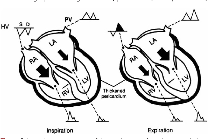 Constrictive Pericarditis As A Never Ending Story Whats New