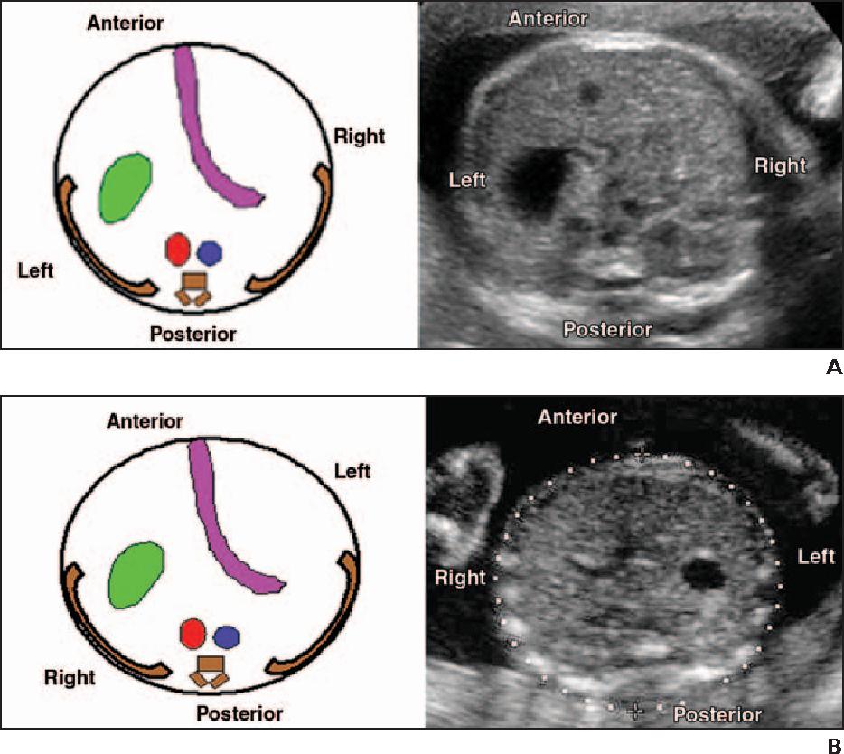 Figure 1 From Ultrasound Of Fetal Cardiac Anomalies Semantic Scholar
