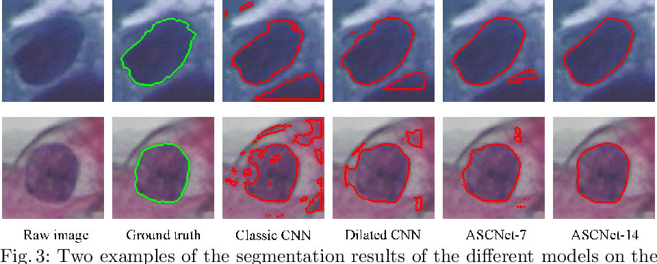 Figure 3 for ASCNet: Adaptive-Scale Convolutional Neural Networks for Multi-Scale Feature Learning
