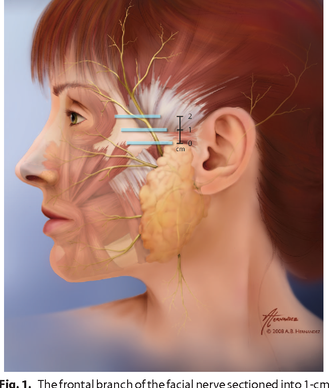 The frontal branch of the facial nerve across the zygomatic arch ...