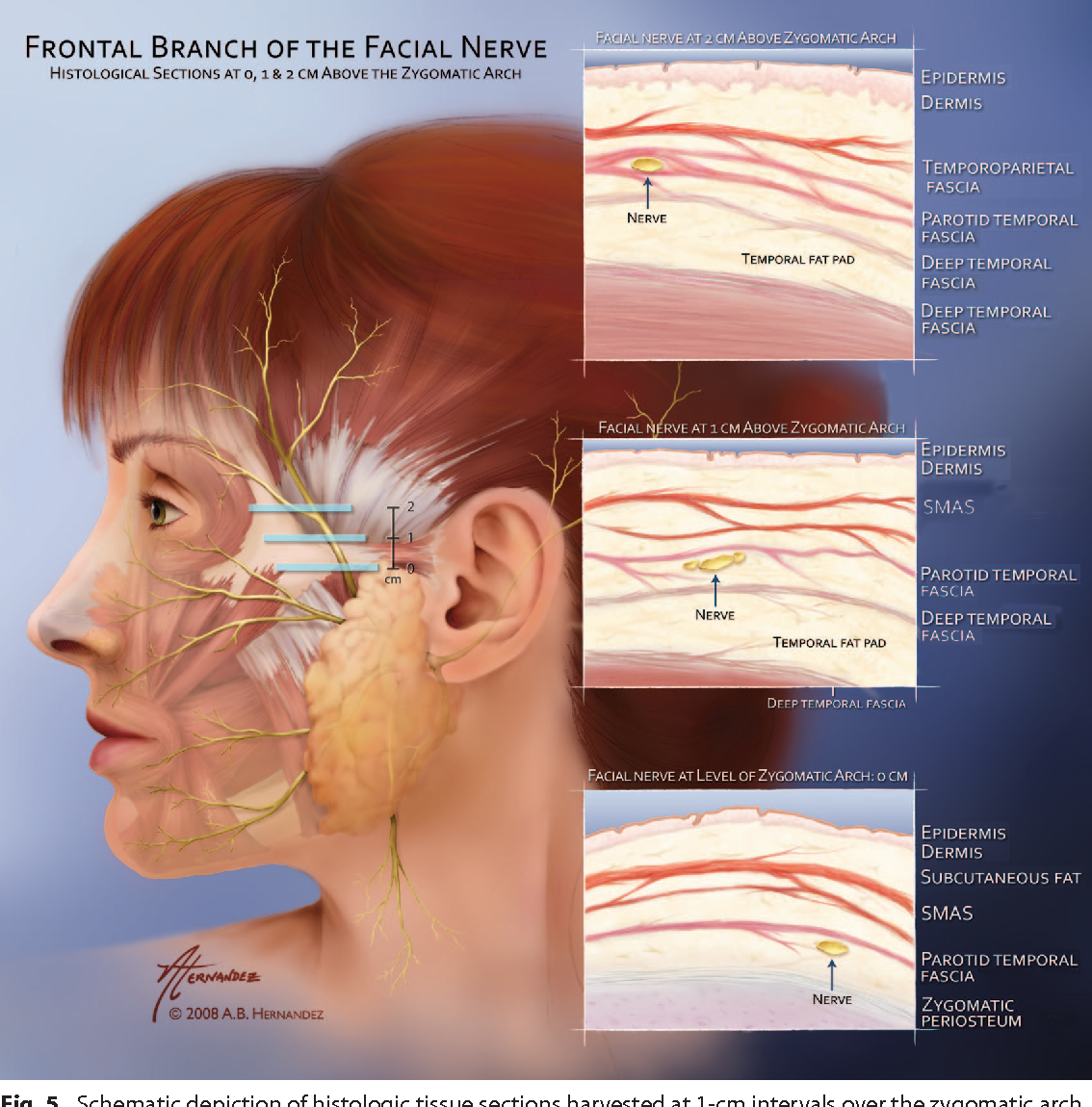 The Frontal Branch Of The Facial Nerve Across The Zygomatic Arch