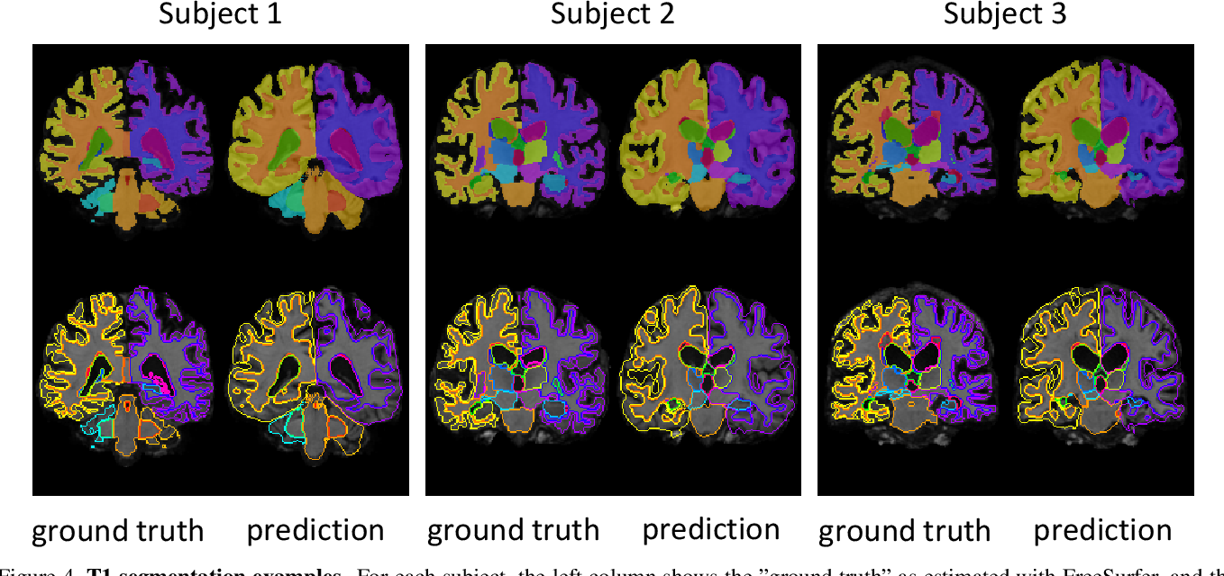 Figure 4 for Anatomical Priors in Convolutional Networks for Unsupervised Biomedical Segmentation