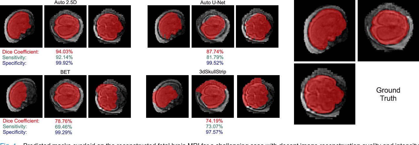 Figure 4 for Auto-context Convolutional Neural Network (Auto-Net) for Brain Extraction in Magnetic Resonance Imaging