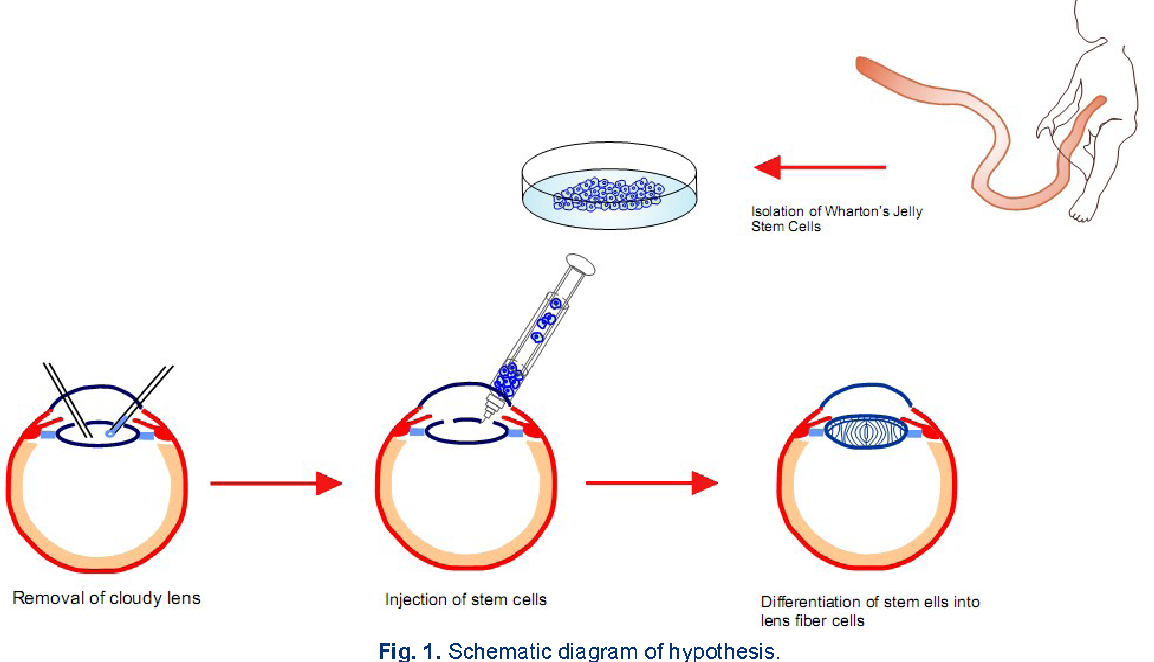Figure 1 from stem cell therapy of cataract semantic scholar schematic diagram of hypothesis ccuart Choice Image