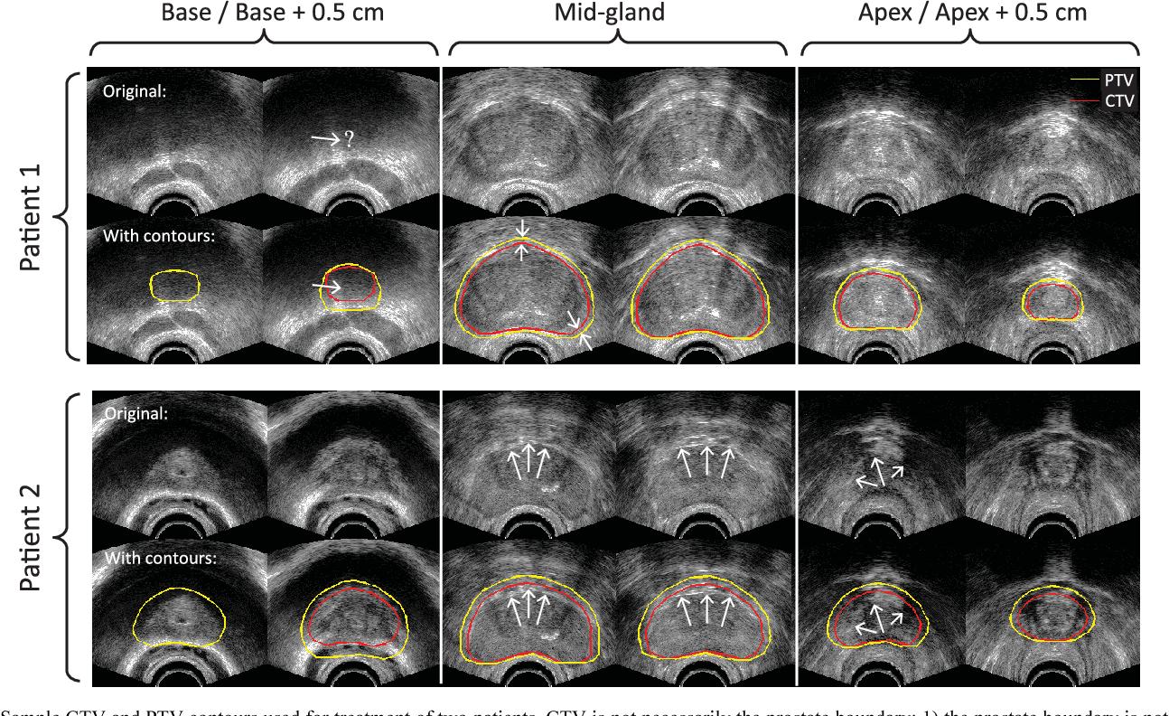 Learning-Based Multi-Label Segmentation of Transrectal Ultrasound ...