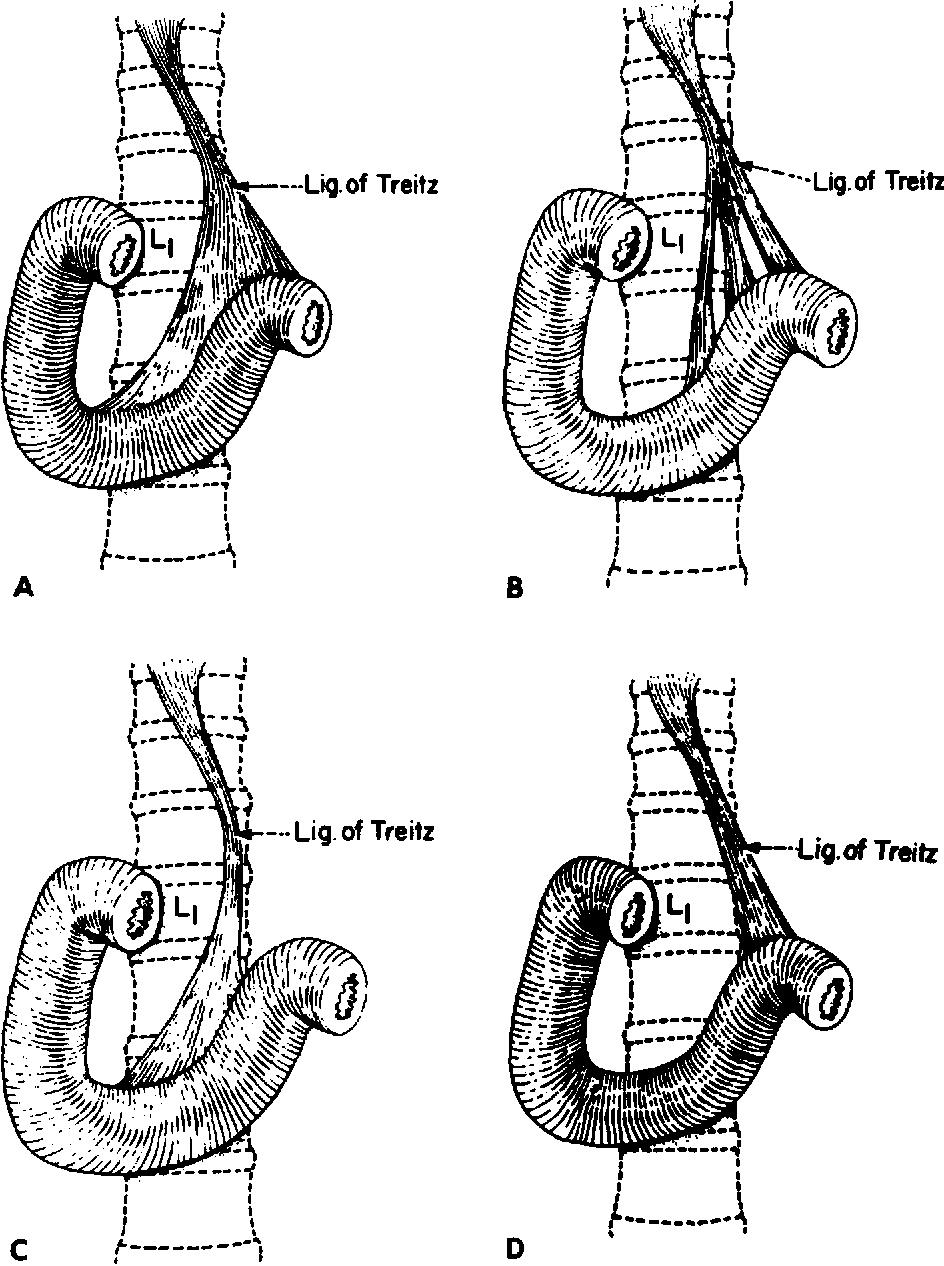 Treitz redux: the ligament of Treitz revisited - Semantic Scholar