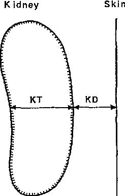 Fig. 9. Illustration of kidney depth, KD, and kidney thickness, KT, for evaluation of kidney centre distance, KCD