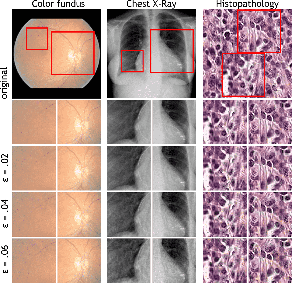 Figure 2 for Adversarial Attack Vulnerability of Medical Image Analysis Systems: Unexplored Factors