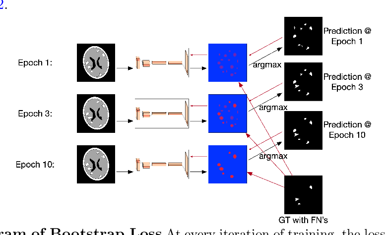Figure 3 for Brain Metastasis Segmentation Network Trained with Robustness to Annotations with Multiple False Negatives