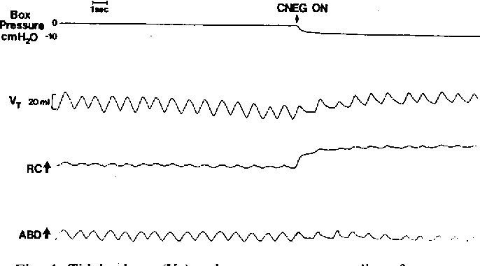 Figure 4 from Lung Volume Changes, Occlusion Pressure and
