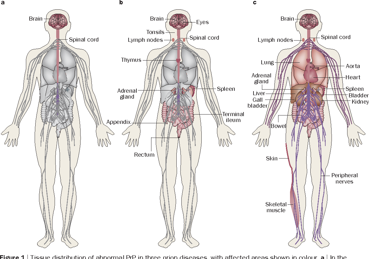A New Prion Disease Relationship With Central And Peripheral