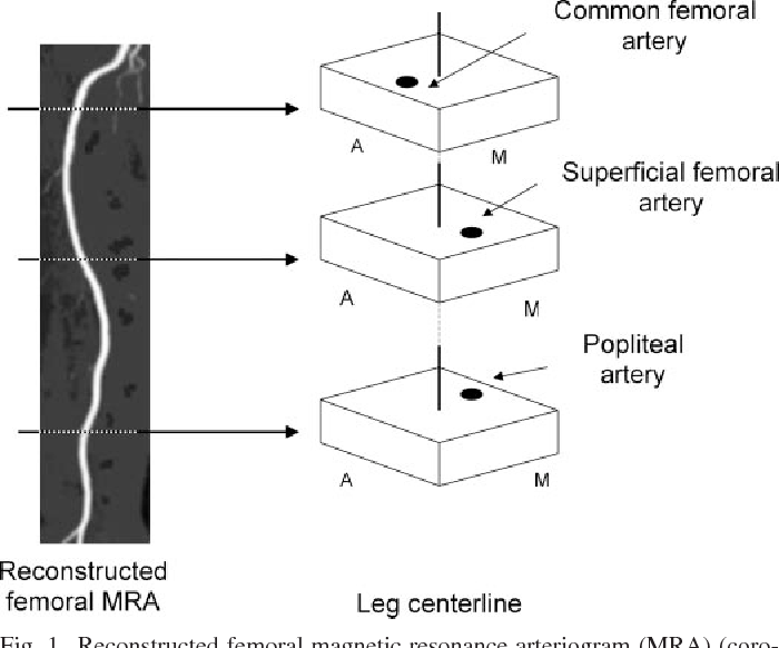 Curvature and tortuosity of the superficial femoral artery: a ...
