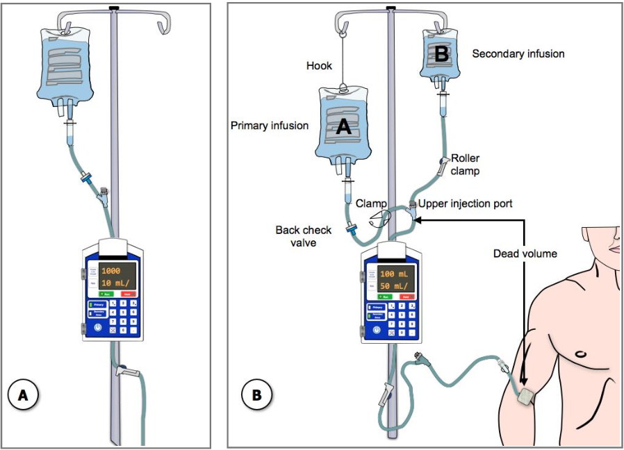 Figure 19 from Multiple Intravenous Infusions Phase 2b: Laboratory