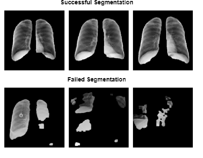 Figure 2 for RANDGAN: Randomized Generative Adversarial Network for Detection of COVID-19 in Chest X-ray