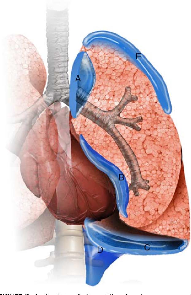 Figure 8 from Pneumothorax in the Supine Patient: Subtle ...