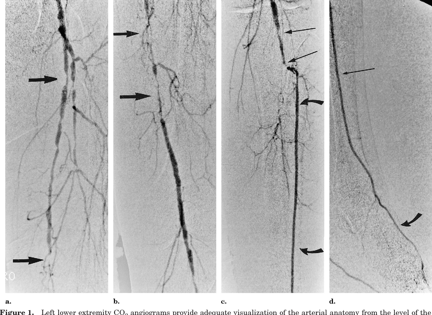 Lower extremity arteriography with use of iodinated contrast ...