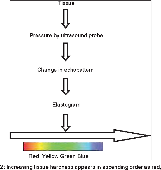 Figure 2: Increasing tissue hardness appears in ascending order as red, yellow, green, and blue
