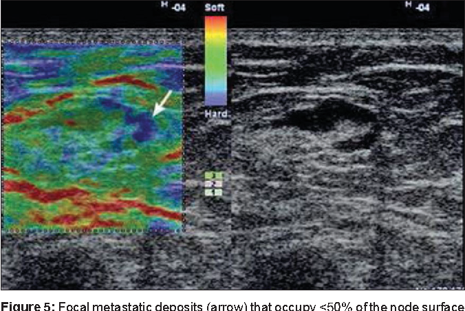 Figure 5: Focal metastatic deposits (arrow) that occupy <50% of the node surface