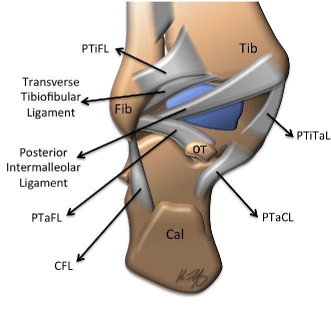 Figure 6 From Magnetic Resonance Imaging Of Ankle Ligaments